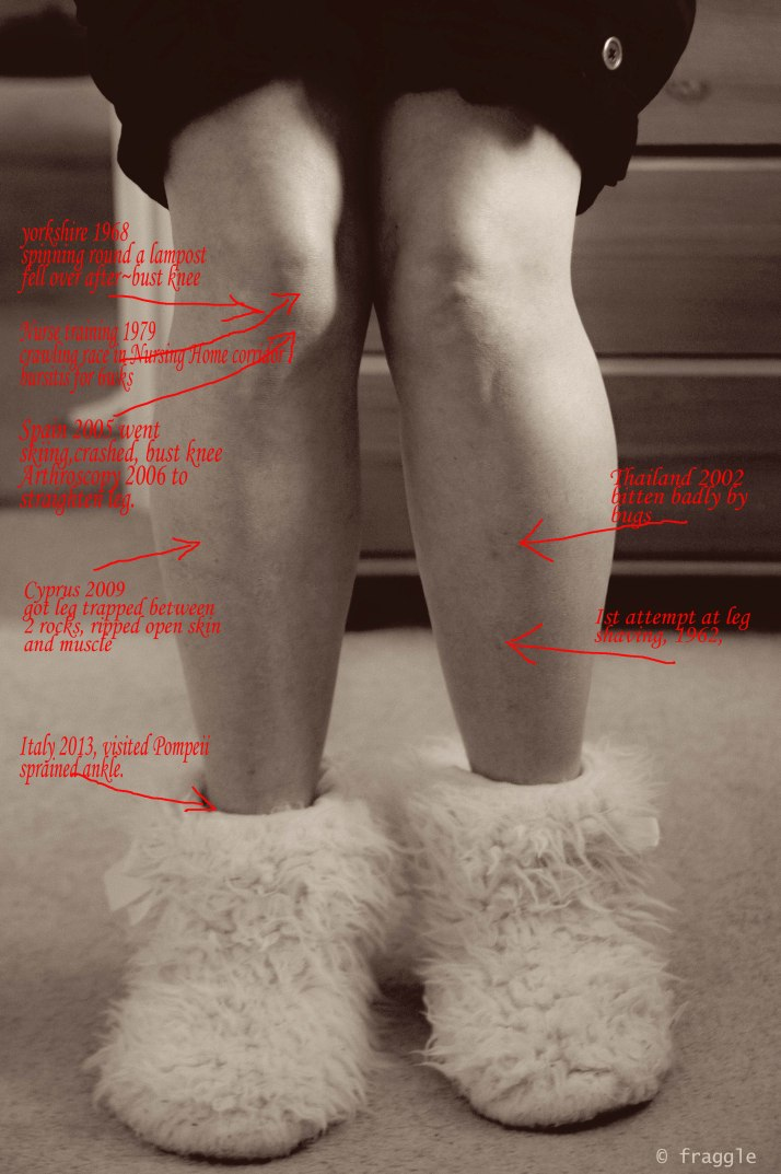 The History of legs